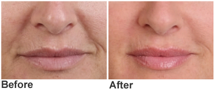 Smoker's Lines, lipstick lines or peri-oral lines treatment